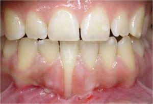 Periodontologia - Recessão Gengival - Antes