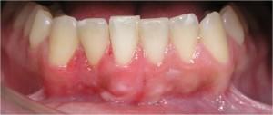 Periodontologia - Recessão Gengival - Depois