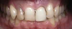 Implante Dentário - Antes