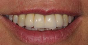 Implante Dentário - Depois