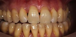 Fechar os espaços nos dentes - Antes