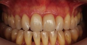 Fechar os espaços nos dentes - Depois