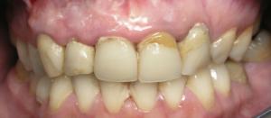 Coroa Dentária - Antes