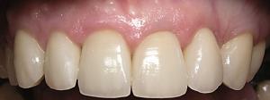 Coroa Dentária - Depois