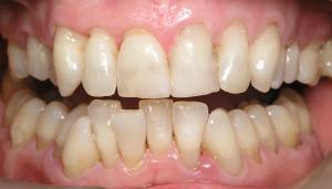Faceta Dentária - Antes