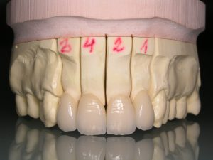 Faceta Dentária - Durante