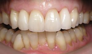 Implantes Dentários - Depois