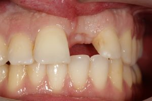 Falta de Dentes - Antes