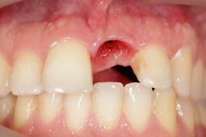 Implantes Dentários - Antes