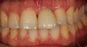 Falta de Dentes - Depois
