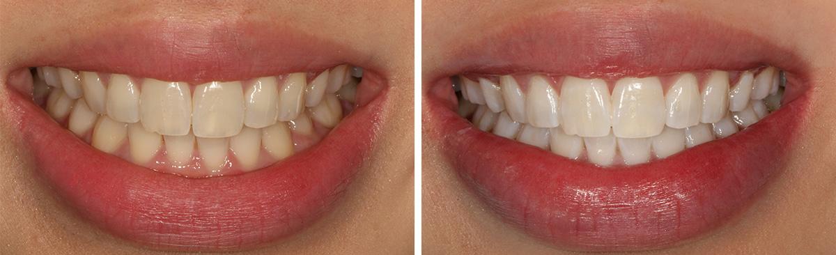 Branqueamento Dentario Perguntas E Respostas Clinicca