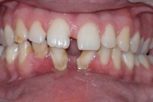 Aparelho Dentário - Antes