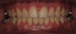 Aparelho Dentário - Depois